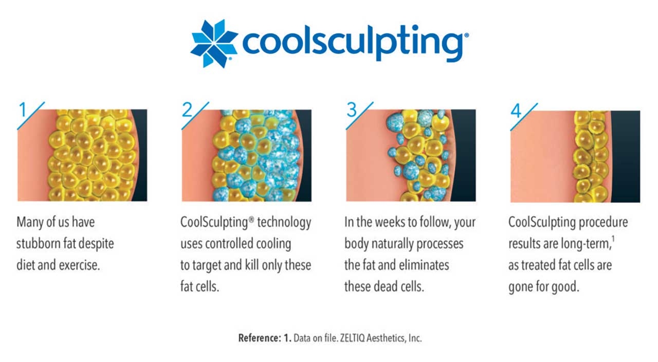 How Coolsculpting Works In Our Clinic