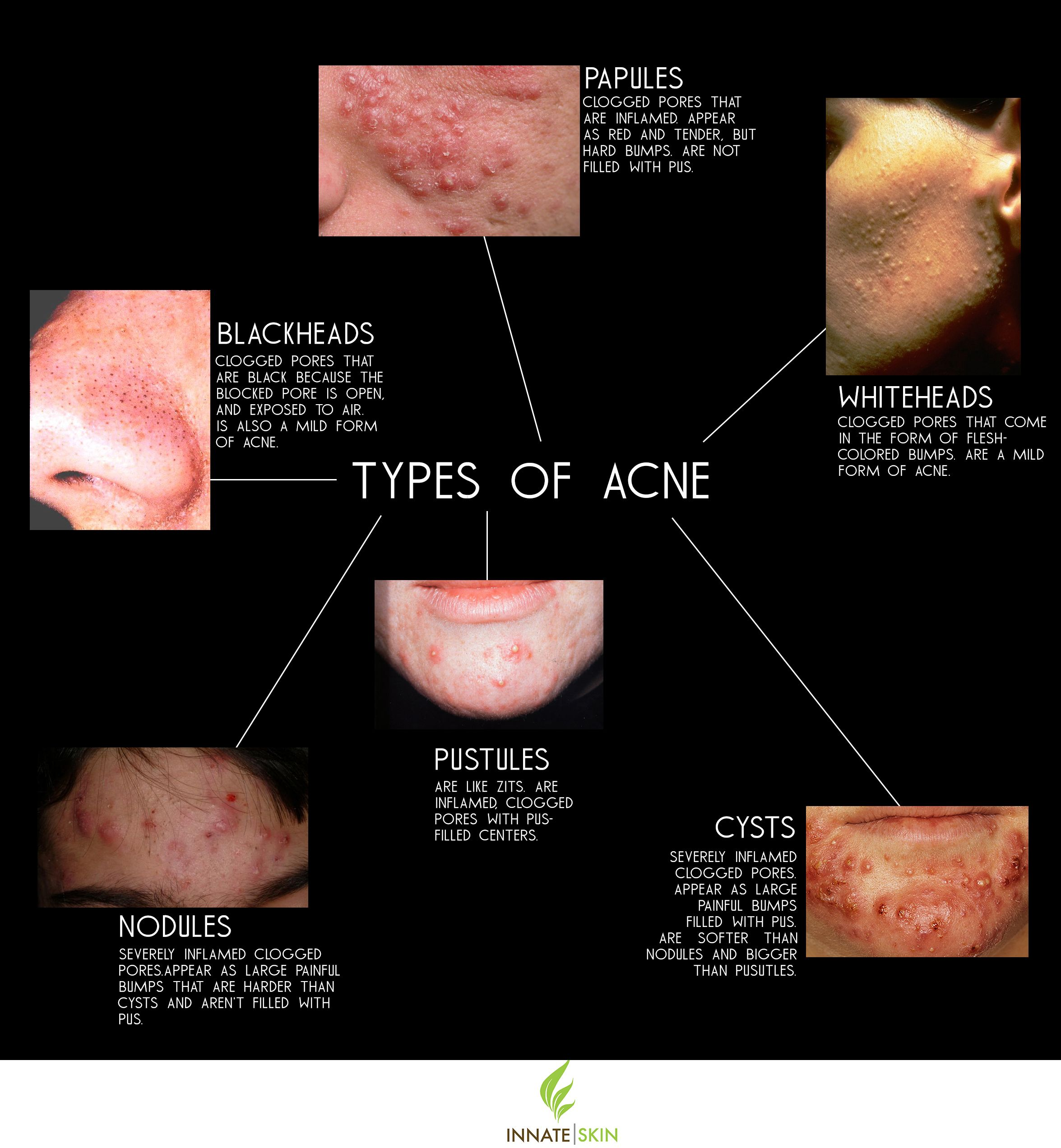 Pimple Treatment & Acne Treatment: Dr Harold Ma