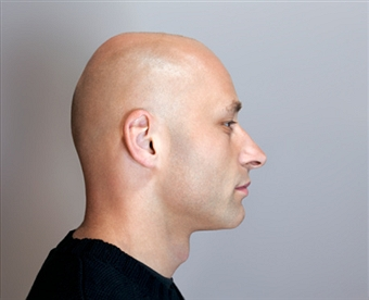fue-hair-transplant-surgery-singapore
