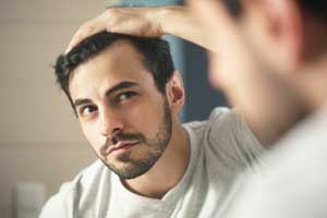 hair loss treatment in Singapore