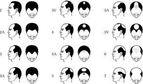 norwood hair loss
